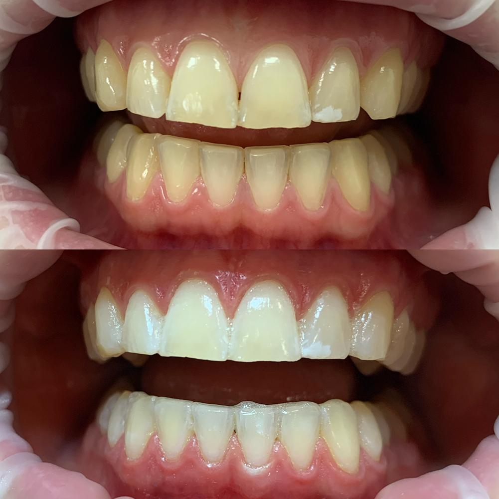 gebit voor en na tanden bleken